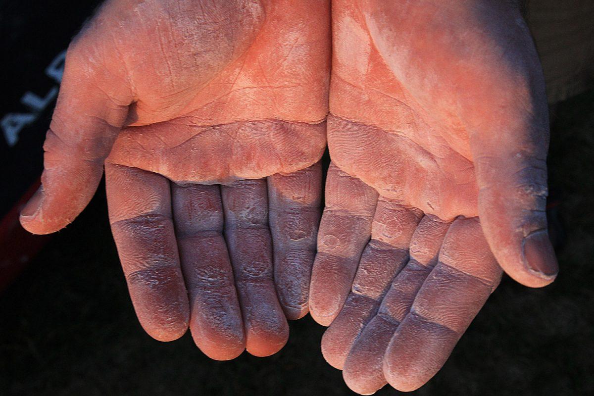 hard skin on hands